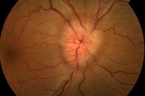 Осмотр глазного дна врачом и ранняя диагностика заболеваний